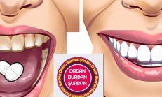 Kırk Yıl Düşünseniz Aklınıza Gelmez, Çürük Dişleri Eski Haline Getiriyormuş