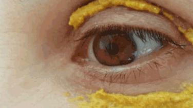 Zerdeçalı Gözlerinin Çevresine Sürenler Bir Daha Bırakmıyor